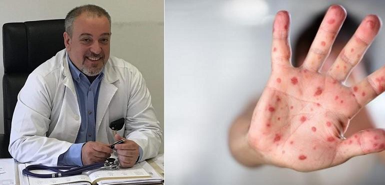 """Интервју со Д-р Ангелчо Андоновски: Каква е состојбата со морбилите и како детската болница """"Козле"""" се справува со нив?"""